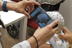 شناسایی وضعیت غیرعادی سر نوزادان با استفاده از گوشی هوشمند