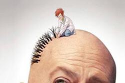 طاسی بهتر است یا کاشت مو!؟