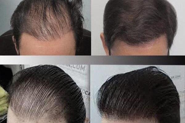 ۱۰ مورد از مهمترین کارهایی که پیش از کاشت مو باید انجام دهید