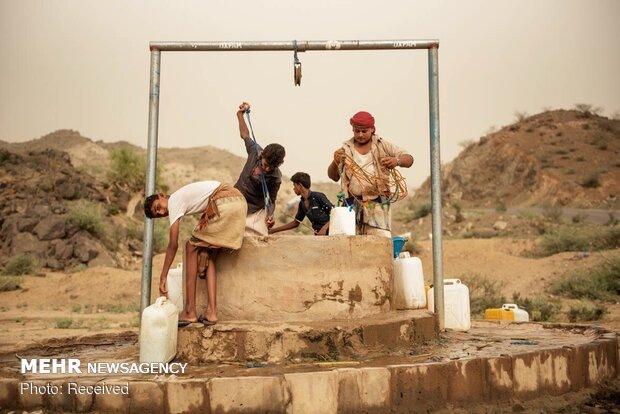 سوء تغذیه و وبا در یمن