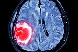 داروی ضدمالاریا به درمان سرطان مغز کمک می کند