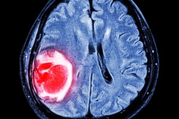 فناوری جدید تصویربرداری نحوه شکل گیری تومورها را مشخص می کند