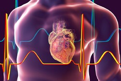 Iranian co. develops heart attack diagnosis device