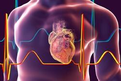 Iranian co. develops heart attack diagnosis device