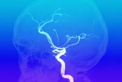 کشف سریع «رگ برآمدگی» مغز با هوش مصنوعی