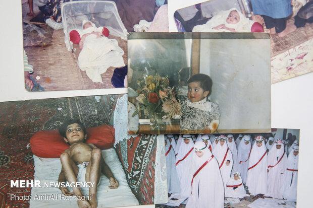 زخمهای فرشته همسن او هستند. از نوزادی تا همین امروز خانوادهاش هر روز تلاش کردهاند تا فرزندشان با وجود زخمها و چندین بیماری دیگر، از چشیدن طعم زندگی دور نماند