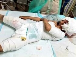 پاکستان میں کتوں کے حملے میں زخمی ہونے والا 6 سالہ بچہ جاں بحق