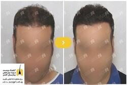 چه عواملی باعث ریزش موی مردان میشود؟