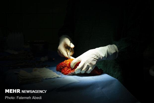 بافتهایی از سینه که به علت تومورهای سطان برداشته شده است.این بافتها به آزمایشگاه جهت بررسی های بعدی انتقال داده می شوند