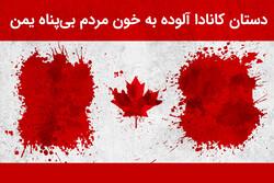 دستان کانادا آلوده به خون مردم یمن