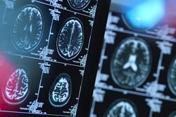 کرونا ماده خاکستری مغز را کاهش میدهد
