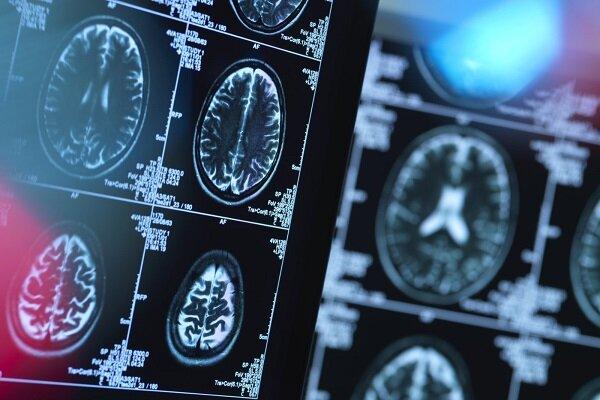 کلید روشن و خاموش کردن درد در مغز کشف شد