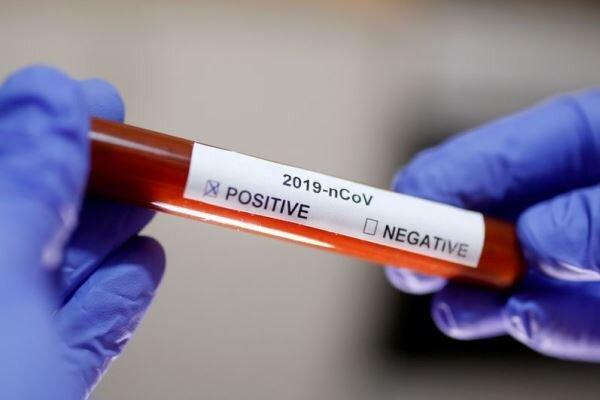 İran'da koronavirüsten hayatını kaybedenlerin sayısı 107'ye çıktı