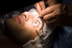 تولید چسب موقت ترومای چشمی/ جلوگیری از کوری در کمتر از یک دقیقه