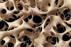 داربستهای استخوانی جایگزین بافتهای آسیبدیده میشود