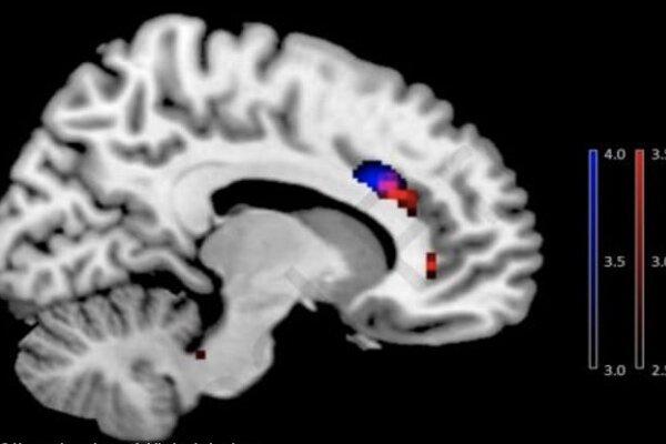 اعتیاد به موبایل مغز افراد را تغییر می دهد