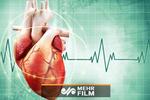 درمان مطمئن اختلال ریتمی قلبی در ایران
