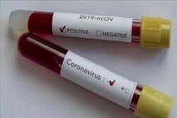Global coronavirus infection exceeds 83,000