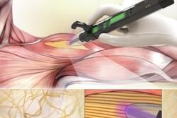 محقق ایرانی پرینتر سه بعدی برای جایگزین کردن ماهیچه ساخت