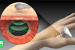 باتری زیستی کاشت ایمپلنت پزشکی را تسهیل میکند