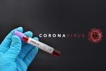 دنیا بھر میں کورونا وائرس سے ہلاکتوں کی تعداد 59 ہزار سے زائد ہوگئی