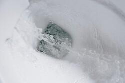 دستشویی هوشمند بیماریها را شناسایی میکند