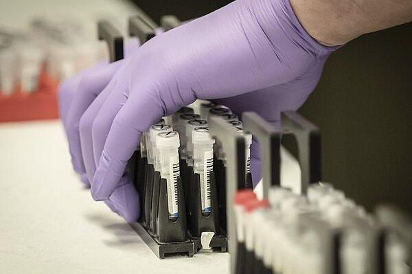 """وزارة الصحة تحتوی جزئیا وباء """"کورونا"""" واستمرار انخفاض الوفیات فی جمیع المحافظات الإیرانیة"""
