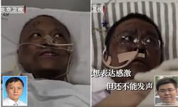 Çin'de Kovid-19'u yenen iki doktorun ten rengi değişti!