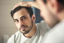 چطور میتوان ریزش مو را درمان کرد؟
