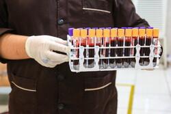 جذب ۲۸۸ نیرو در انتقال خون/ تجهیزات مورد نیاز خونی تامین شد