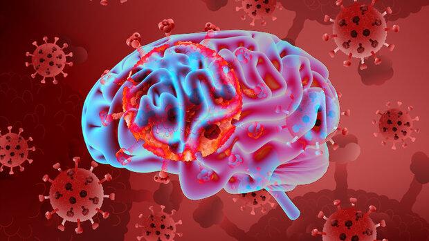 بیماری کووید ۱۹ با نشانه سکته مغزی ظاهر می شود
