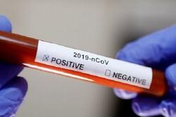 احتمال کاهش نمونهگیری کرونا طی هفتههای آینده