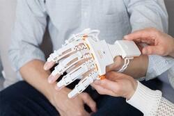 القفازات الروبوتية تساعد في إعادة تأهيل المرضى