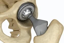 پوشش پلیمری برای جلوگیری از پس زده شدن ایمپلنت استخوانها