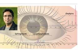 روش ابداعی محقق ایرانی برای تشخیص بیماری های چشمی