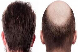 هر چیزی که باید در مورد کاشت مو بدانید