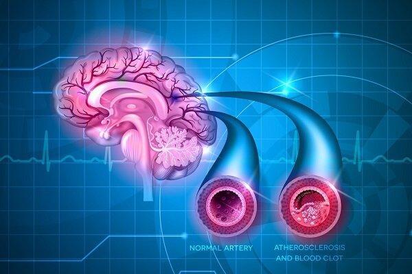 پیش بینی خطر سکته مغزی با اندازه و شکل عروق خونی مغز