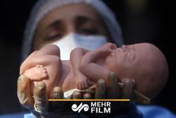 بررسی عوارض روانپزشکی سقط عمدی جنین