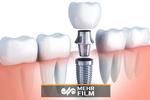 ایمپلنت دندان چگونه انجام میشود؟