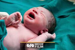 تولد نوزاد از مادر کرونایی در حال کما