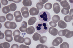کشف پروتئینی که خون را جوان و سالم میکند