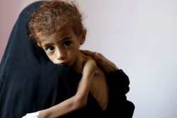 100,000 Yemeni infants die every year due to siege, war