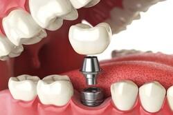 بهبود مشکلات دهان و دندان با فناوریهای جدید پزشکی