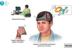 کلاه هوشمند از تشنج مغزی بعد از جراحی جلوگیری میکند