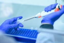 وزارة الصحة تبدا الاسبوع المقبل الاختبار البشري للقاح كورونا الايراني