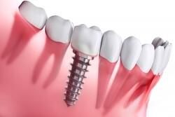 قیمت مناسب ایمپلنت دندان در سال ۹۹