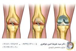 از جراحیهای مفصل لگن و زانو نترسید