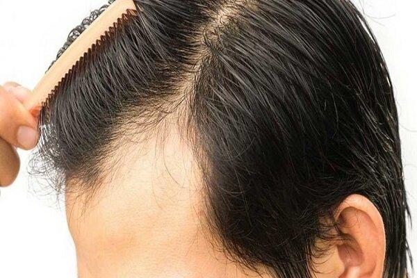تاثیر ماینوکسیدیل بعد از کاشت مو چگونه است؟