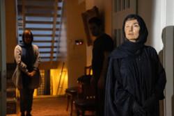 روایت بازیگری که صورتش سوخت در جشنواره فیلم فجر
