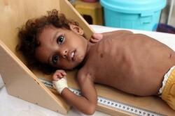 UN warns 400,000 Yemeni children may starve to death in 2021